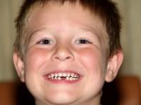 Щоб дитина не боялася стоматолога
